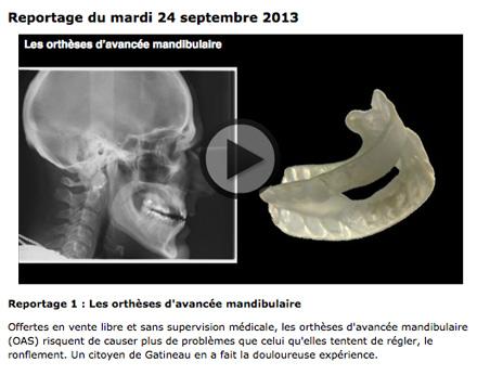 Reportage de radio-canada sur les orthèses d'avancée mandibulaire et les problèmes qui peuvent y être associées