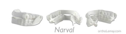 orthèse d'avancée mandibulaire NARVAL cad cam pour traiter l'apnée du sommeil