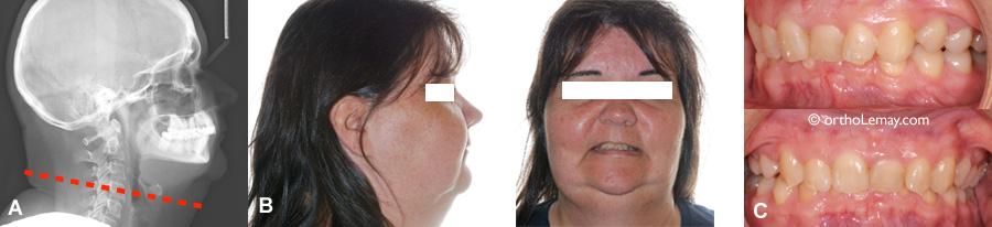 Circonférence du cou et risque d'apnée du sommeil et malocclusion dentaire