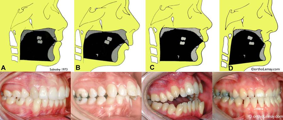 Les mâchoires influencent la position de la langue et la respiration.