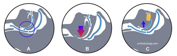 Orthèse d'avancée mandibulaire et dégagement des voies respiratoires