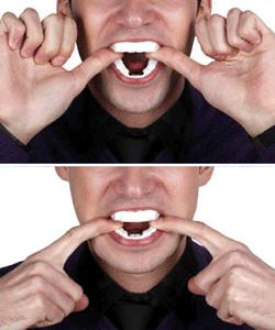 Procédure pour insérer une orthèse d'avancée mandibulaire en bouche